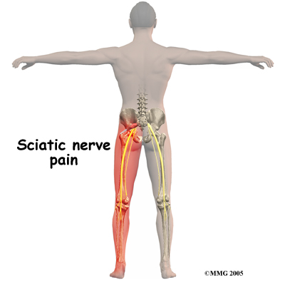 Sciatica Nerve Pain and Sciatica Treatment - Metairie Louisiana